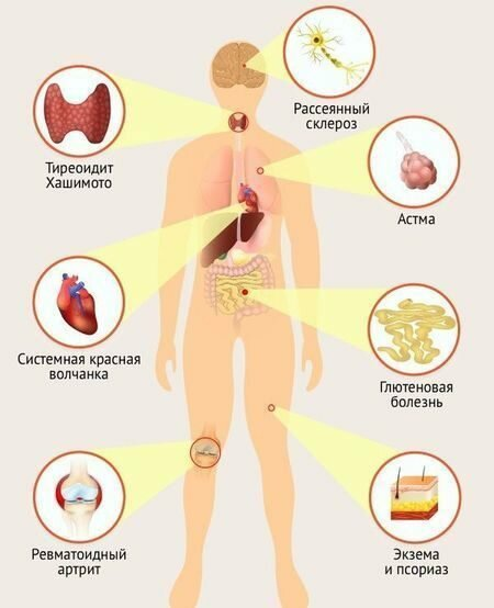 Как связаны микрофлора и аутоиммунные заболевания: что говорит наука?