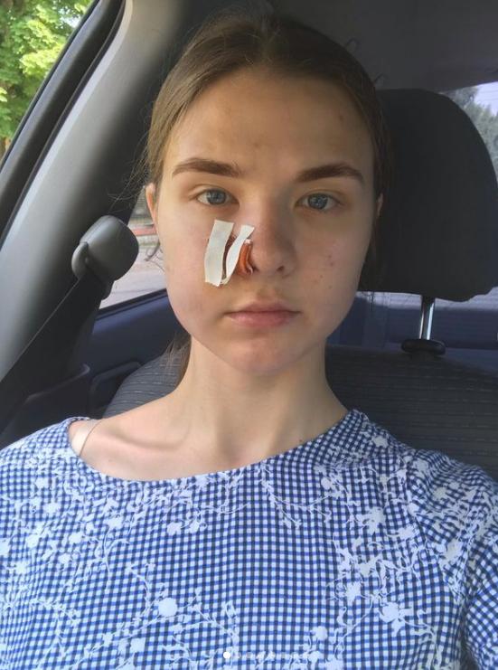 В Карпатах турист из Киева устроил стрельбу в отеле и ранил отдыхающих