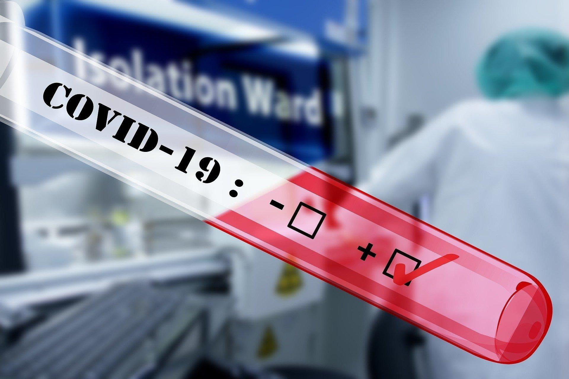Тесты на антитела к COVID-19 в 50% ошибаются
