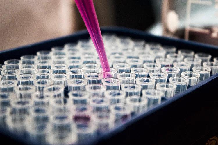 Стал доступен анализ крови на болезнь Альцгеймера