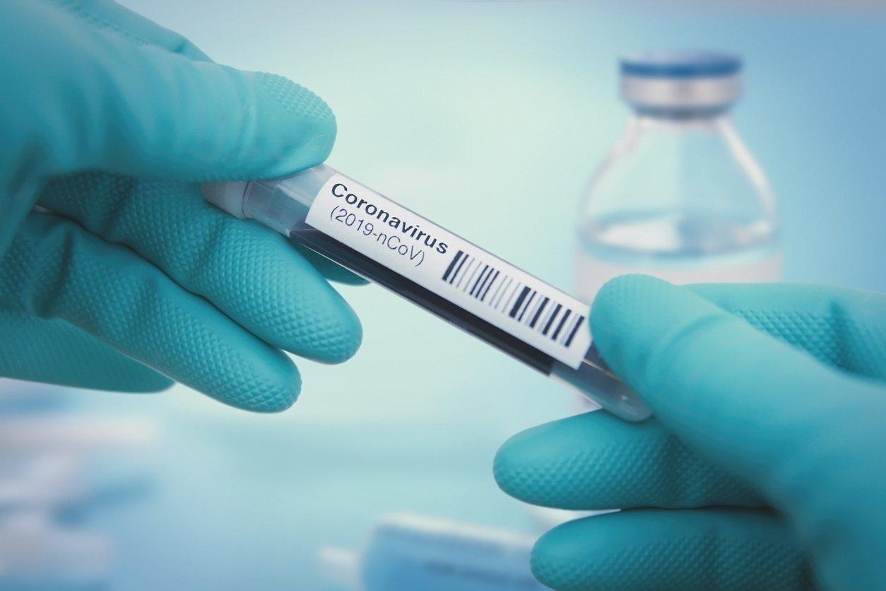 Врачи описали смерть от коронавируса