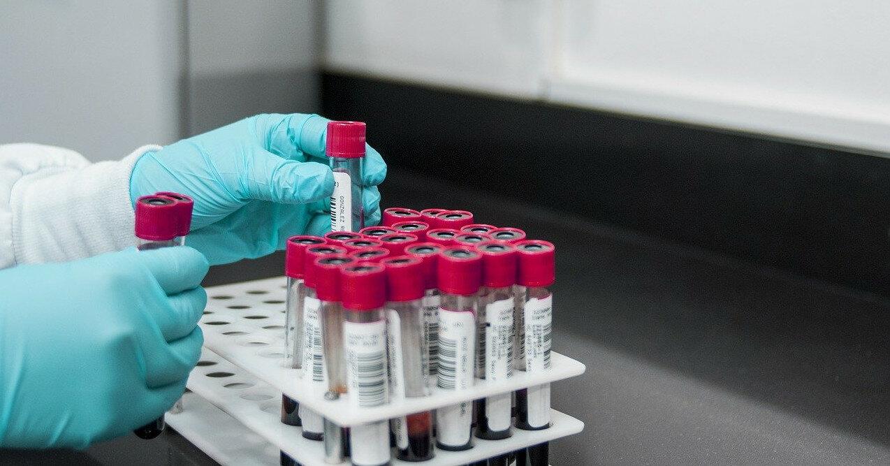 Ученые выявили новую опасность высокого уровеня холестерина