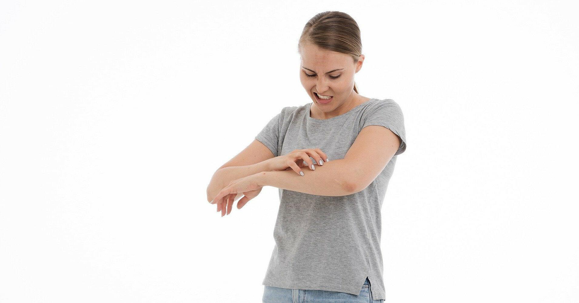 Зуд от укуса комара: 4 средства его устранения