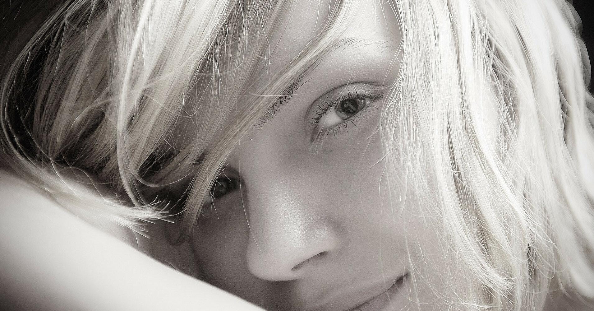 Меланин: от чего зависит пигментация кожи и помогут ли таблетки