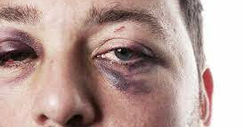 Киевские мужчины все чаще жалуются на домашнее насилие